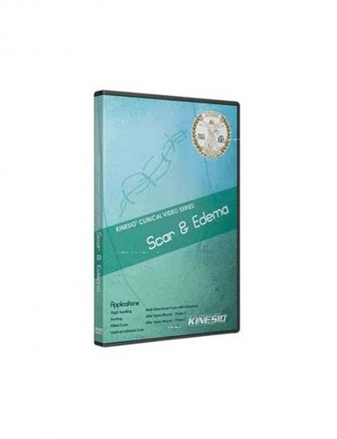 Kinesio Clinical Video Series - Scar & Edema